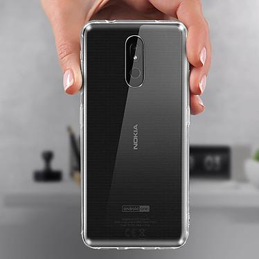 Avis Avizar Coque Transparent pour Nokia 3.2
